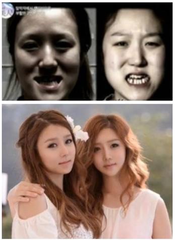 韩综艺节目成美人熔炼炉 畸脸twins整形后长相仍同步
