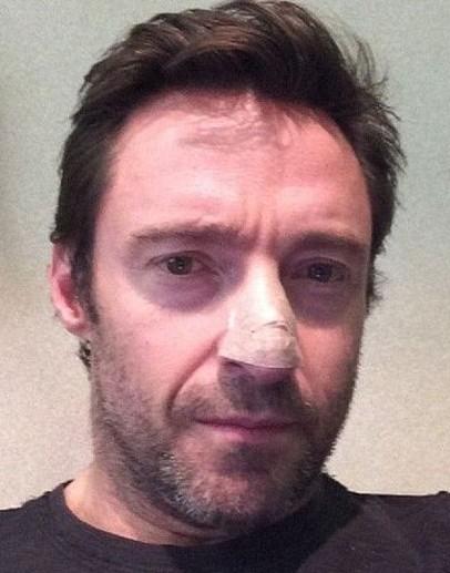 休·杰克曼确诊患上皮肤癌 已切除鼻上皮肤治疗