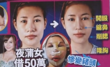 """""""夜蒲女""""借50万韩国整容 惨变""""猪头""""不忍直视"""